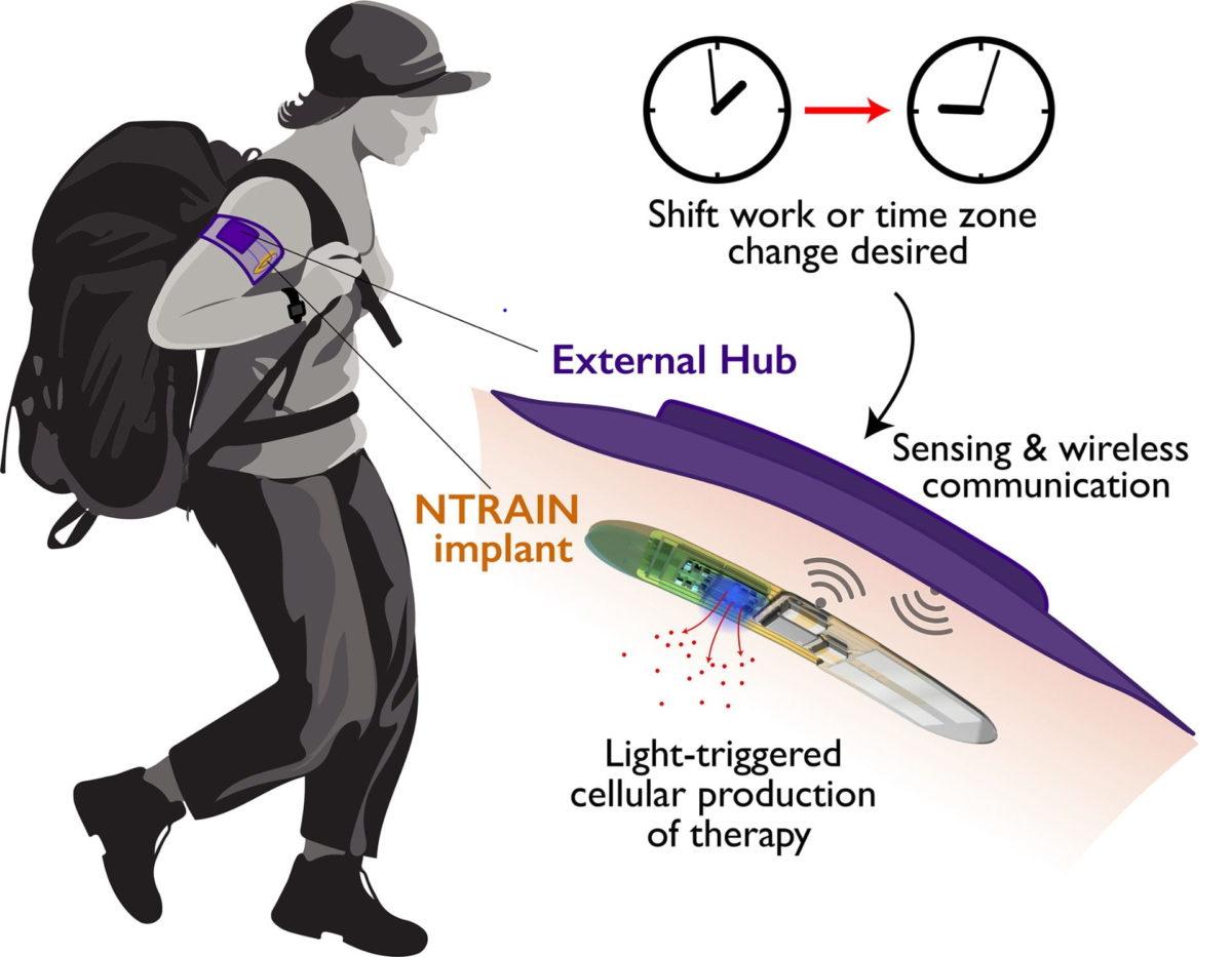 ntrain jet lag cure implant